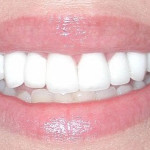 After Teeth Treatment from WeMakeSmiles