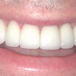 After Teeth Treatmnet from WeMakeSmiles