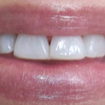 Before Teeth Treatment from WeMakeSmiles
