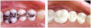 Tooth Color Fillings